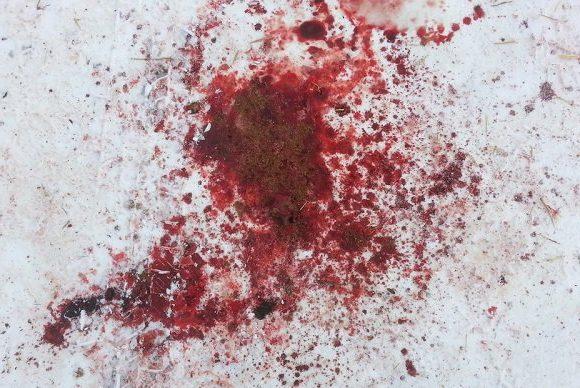 В Харькове запускающему фейерверки оторвало кисть руки